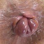 脱肛女子の糞漏らしと脱糞【脱肛糞喇叭】(だっこうくそらっぱ)サンプル11