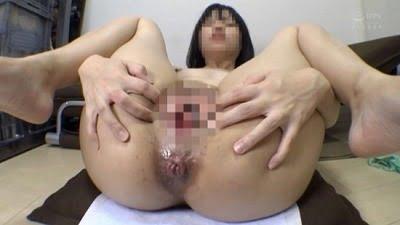 脱肛女子の糞漏らしと脱糞【脱肛糞喇叭】(だっこうくそらっぱ)サンプル14